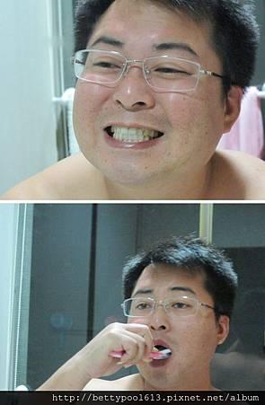]Protis普麗斯牙齒美白