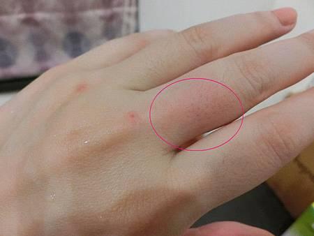 叮嚀防蚊液