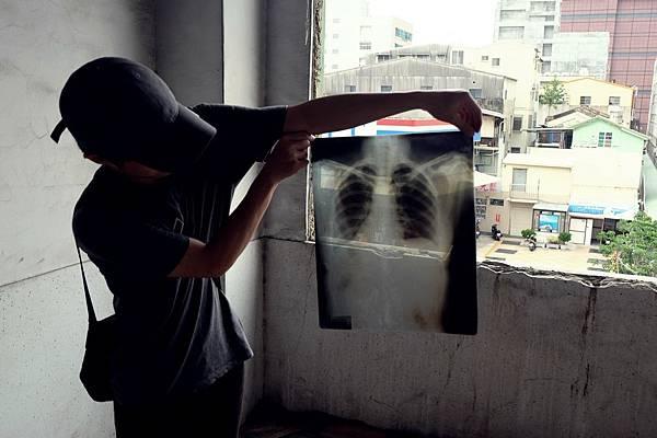 發現X光片