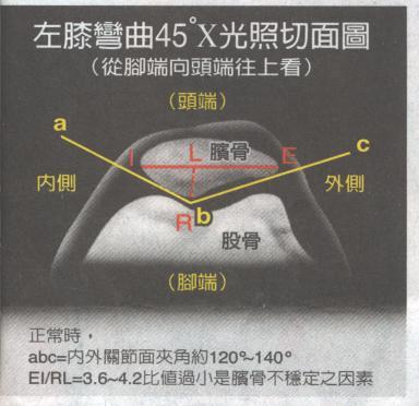[PF+angle.jpg]