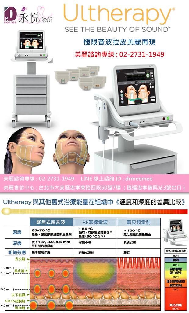 Ulthera極線音波拉提治療