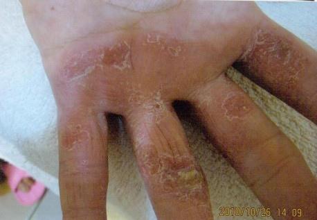 B先生手部脫皮使用前-1