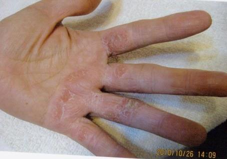 B先生手部脫皮使用前-2