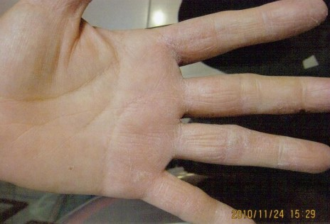 B先生手部脫皮使用後-2