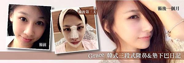 韓式三段式隆鼻墊下巴
