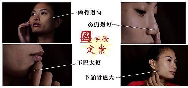教主醫美整形外科診所郭菁松醫師削骨案例