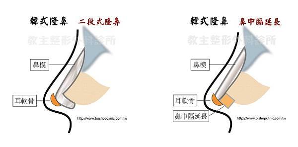 郭菁松削骨-10.jpg