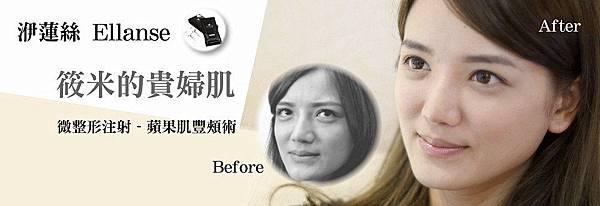 01.少女奇蹟針依戀詩Ellanse權威專家推薦