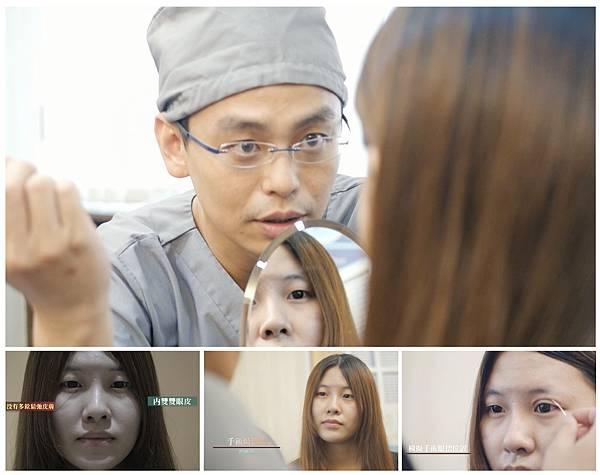 06割縫雙眼皮手術消腫.jpg