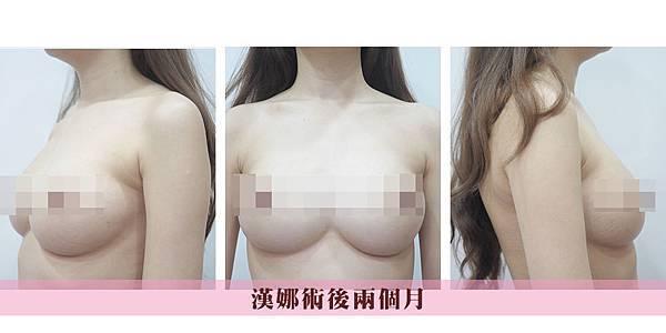 015果凍矽膠隆豐胸乳手術