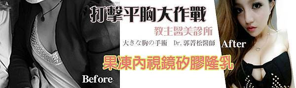 001果凍矽膠隆豐胸乳手術價格價錢費用價位.jpg