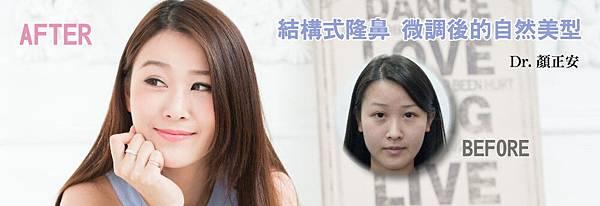 01隆鼻日記心得分享.jpg
