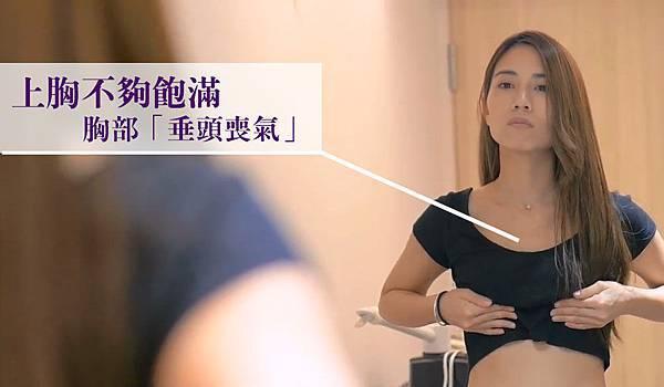03自體脂肪隆乳術後恢復其風險後遺症鈣化.jpg
