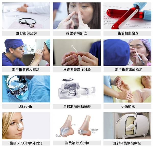 隆鼻手術術前術後注意事項
