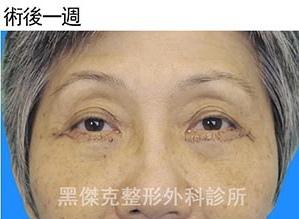 眼袋Eyebag-外開001.jpg