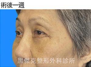 眼袋Eyebag-外開002.jpg