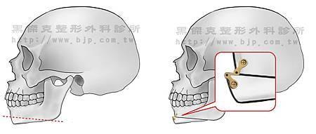 Cheekbone  削骨-下巴後縮01.jpg