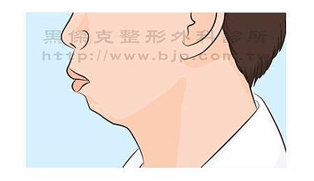 chin 下巴後縮01.jpg