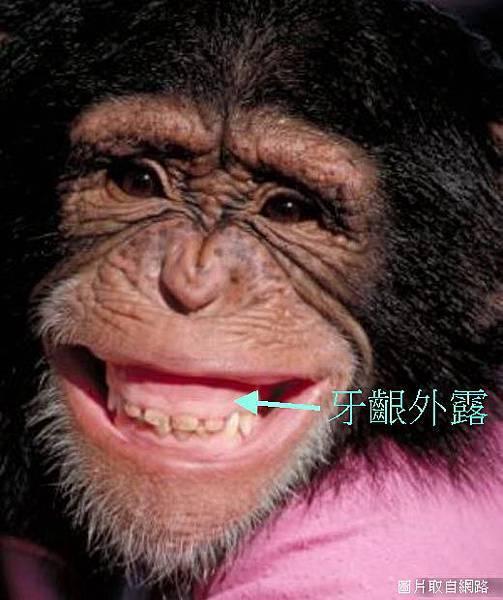 gummy smile-1.jpg