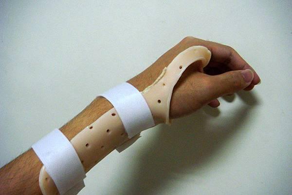 我的肌腱炎手