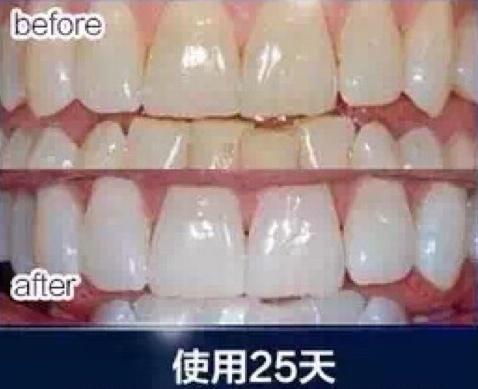 median牙膏(實用)-1.jpeg