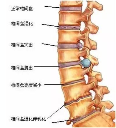 別讓頸椎毀了你的後半生
