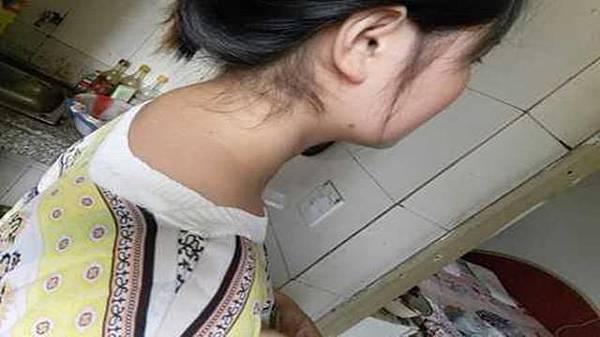頸椎大包上6.jpeg