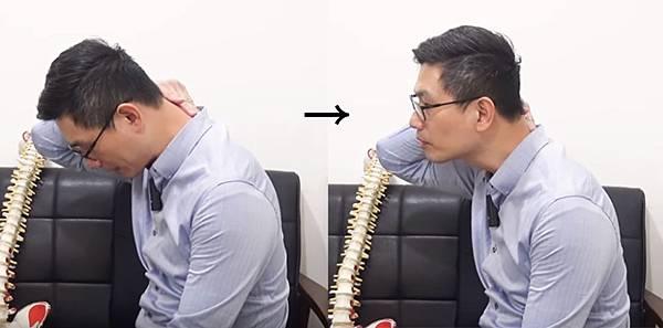 頸椎大包上9.jpg