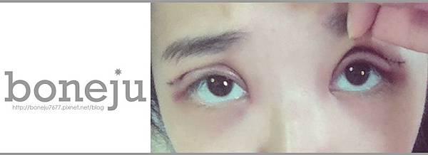 術後第1天3_這張留眼睛就好, 鼻子以下刪掉.jpg