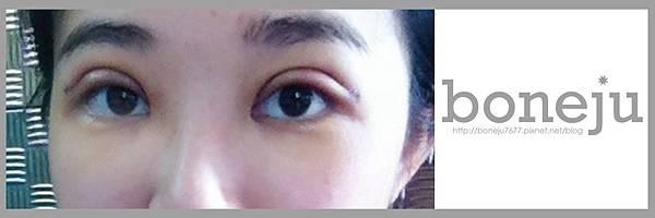 術後第3天3_同樣留眼睛就好.jpg
