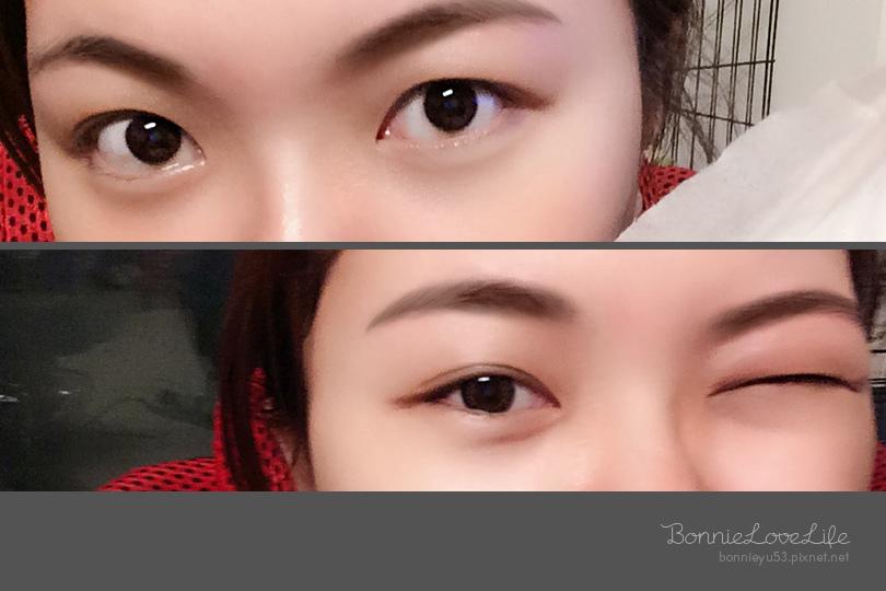 醫美 / 高雄醫美淨妍診所「內開式眼袋移位」跟黑眼圈、眼袋說掰掰
