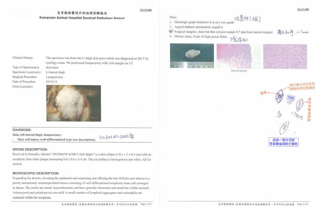 20190119病理報告.jpg