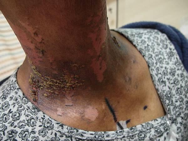 放射線治療後皮膚的副作用