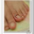 Calgel光療指甲~晶透光療健甲!左腳大拇指側邊受傷