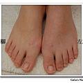 右腳按摩後線條明顯!未按摩的左腳腳背側邊弧度明顯循環弱較水腫