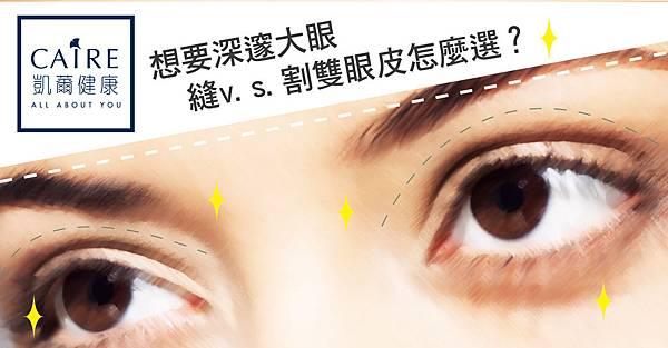 想要深邃大眼 縫v.s.割雙眼皮怎麼選-01