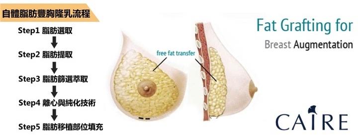 自體脂肪隆乳步驟