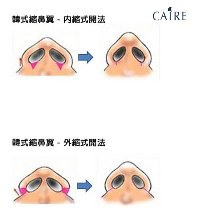 縮鼻翼比較圖