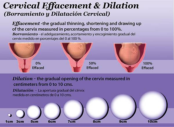 Effacement & Dilation Chart OF-3-spanish.jpg
