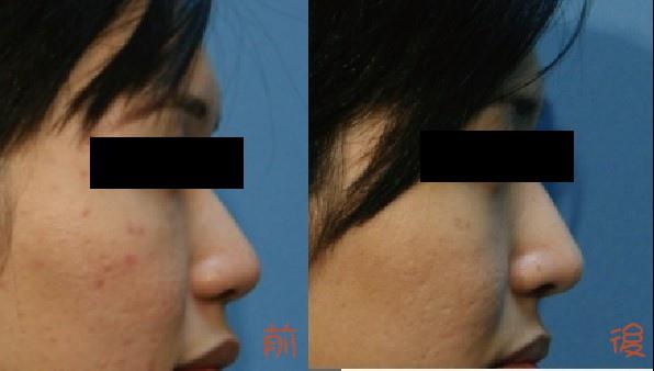 隆鼻02.jpg