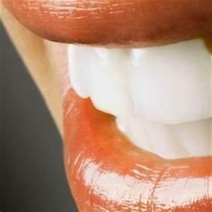 在家牙齒美白取得效果
