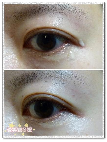 El-特潤DNA眼部06