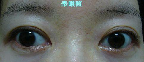 雙眼皮膠條04.jpg