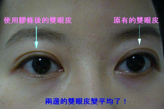 雙眼皮膠條07.jpg