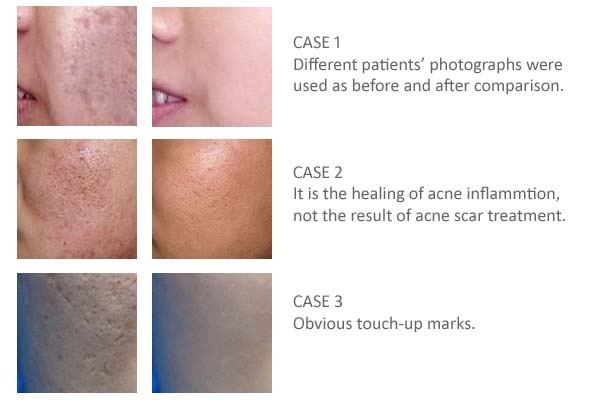 Fake photo selling procedures of acne scar treatment