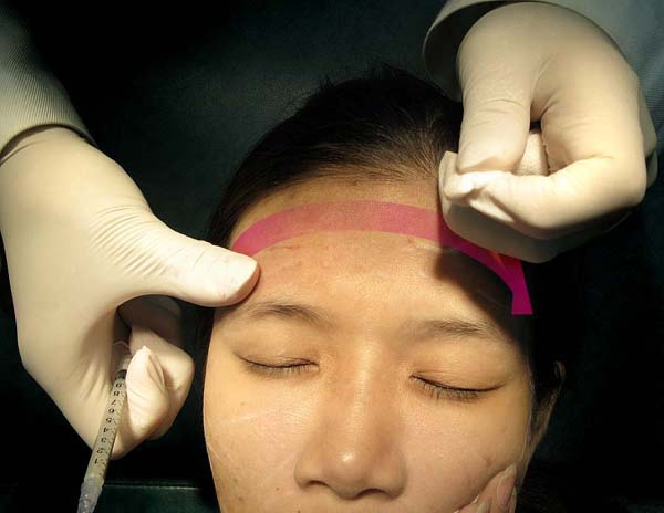 Sculptra forehead reshaping technique