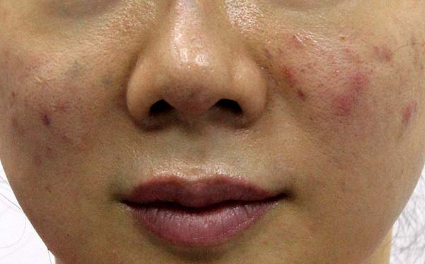 中胚層療法引起感染、紅腫、化膿和結節