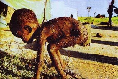 非洲兒童.JPG
