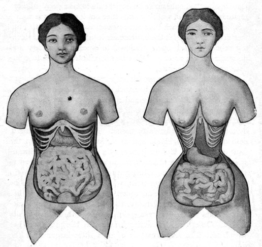 corset-training-before-and-after