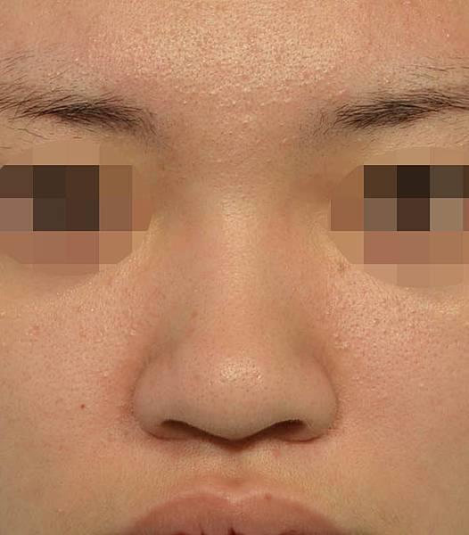 先天鼻樑不夠高,鼻頭圓大, 鼻翼寬